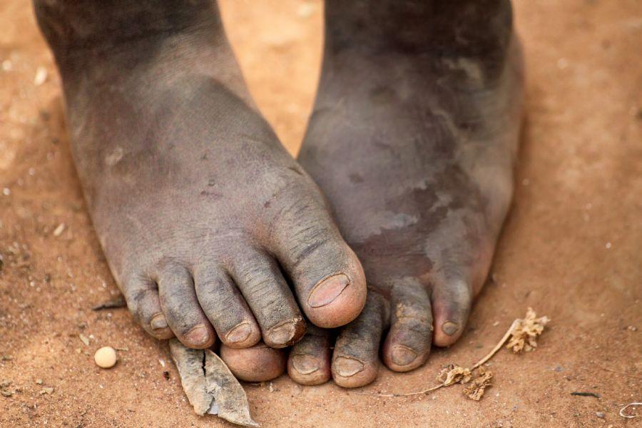 pobreza, africa