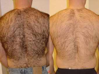 depilacion-laser-masculina-antes-despues[1]